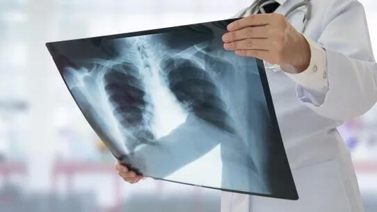protecao radiologica - home